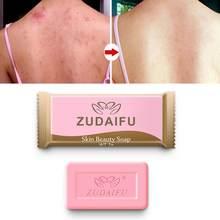 1 psoríase antifúngico sebo eczema banho sabonete de saúde eczema zudif 1pcs ancestral pele de sabão de enxofre condição acne psoríase