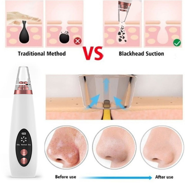 Blackhead Remover Face Acne Needle Pore Vacuum Suction Skin Care Tools Facial Deep Cleansing Machine Pimple