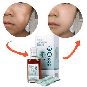 50ml Skin Treatment White Spot Disease Remover Liquid Pigment Melanin Promoting Liniment Skin Vitiligo Leukoplakia Treatment