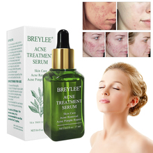 BREYLEE 17ml Acne Treatment Face Serum Nature Leaves Extract Facial Essence Anti Acne Pore Minimizer Skin Care все цены