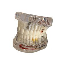 Dental Disease Implant Teeth Model with Restoration Bridge Tooth Dentist for Medical Science Disease Teaching Study