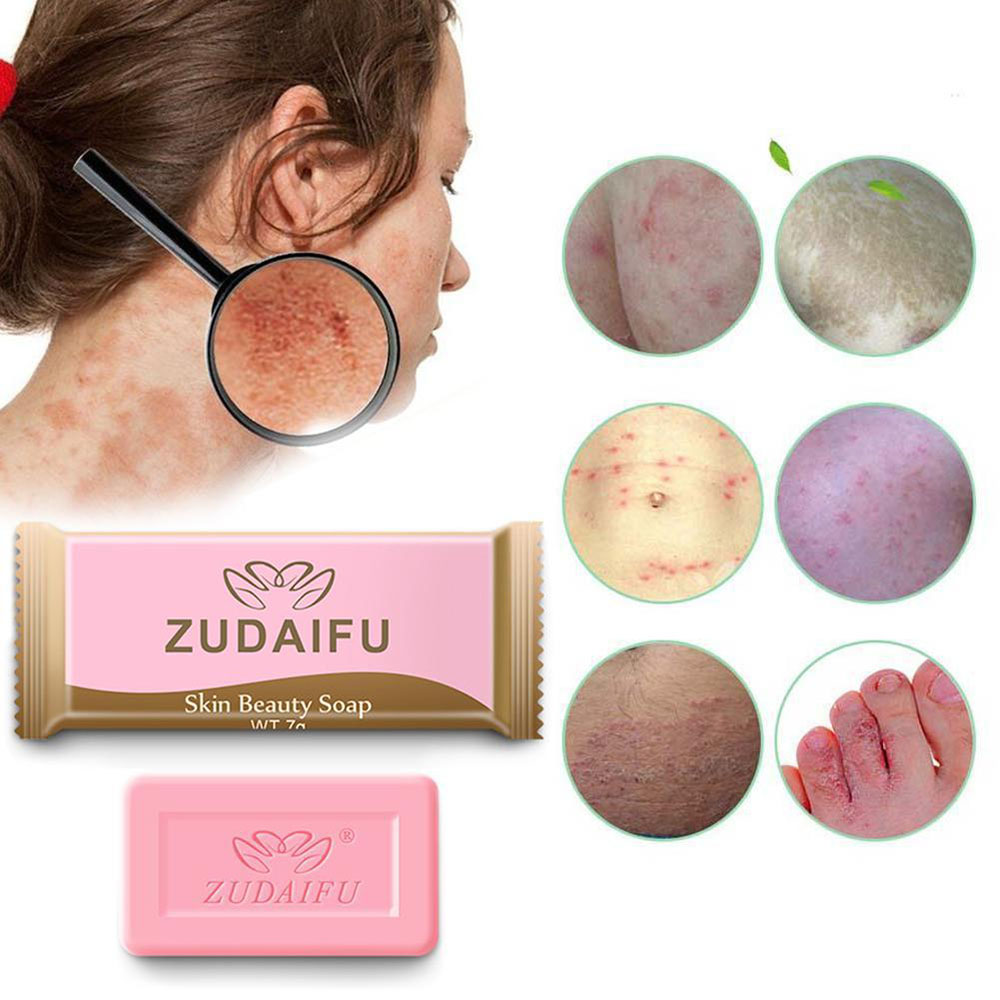 1/2PCS 7g Sulfur Soap Skin Conditions Acne Psoriasis Seborrhea Eczema Anti Fungus Bath Whitening Soap Shampoo Dropship TSLM1