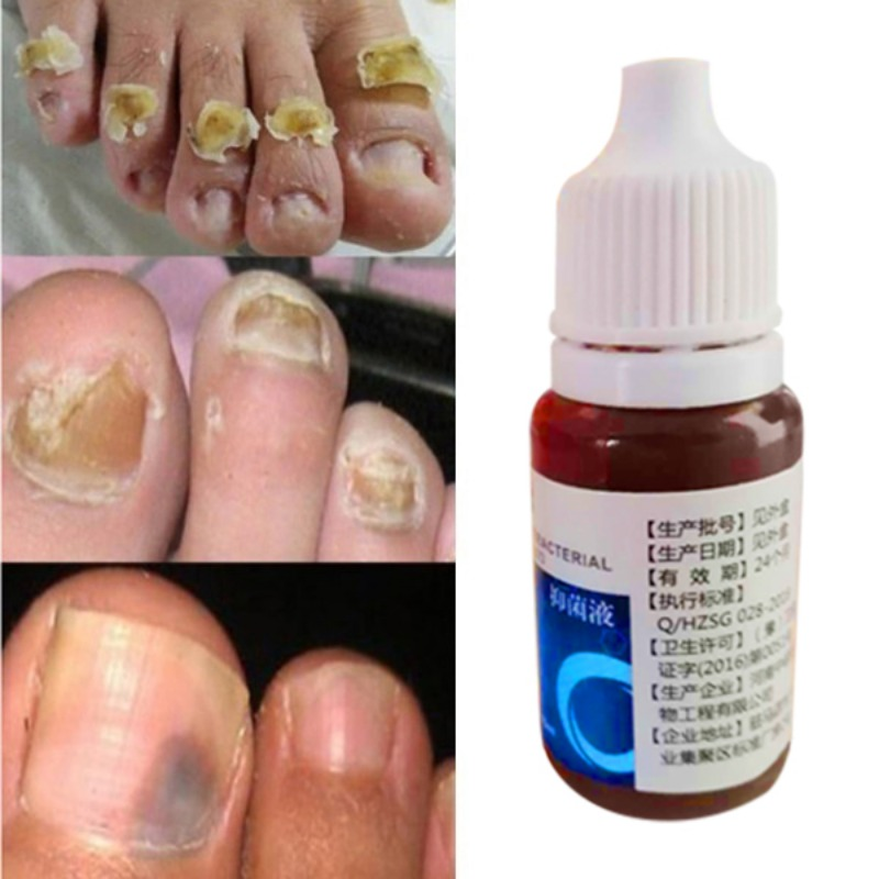 Feet Care Oil Nail Foot Whitening Nail Repair Fungus Removal Gel Anti Infection Paronychia Onychomycosis Fungal Nail Treatment