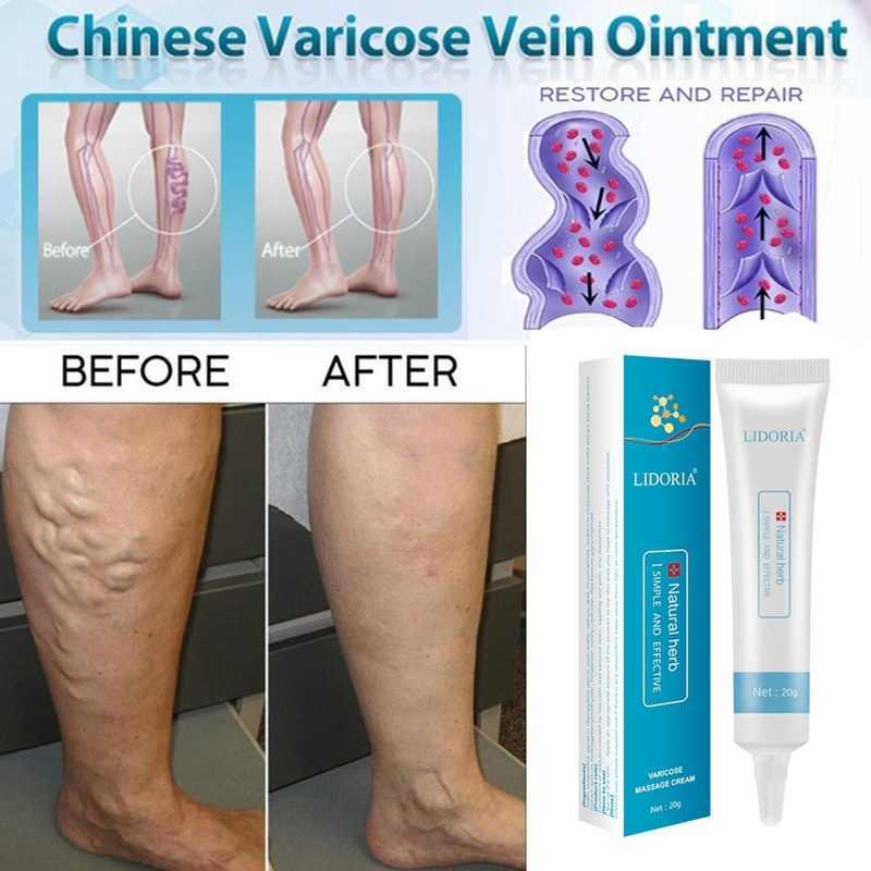 unguent varicoză ce poate fi în picior de varicoză