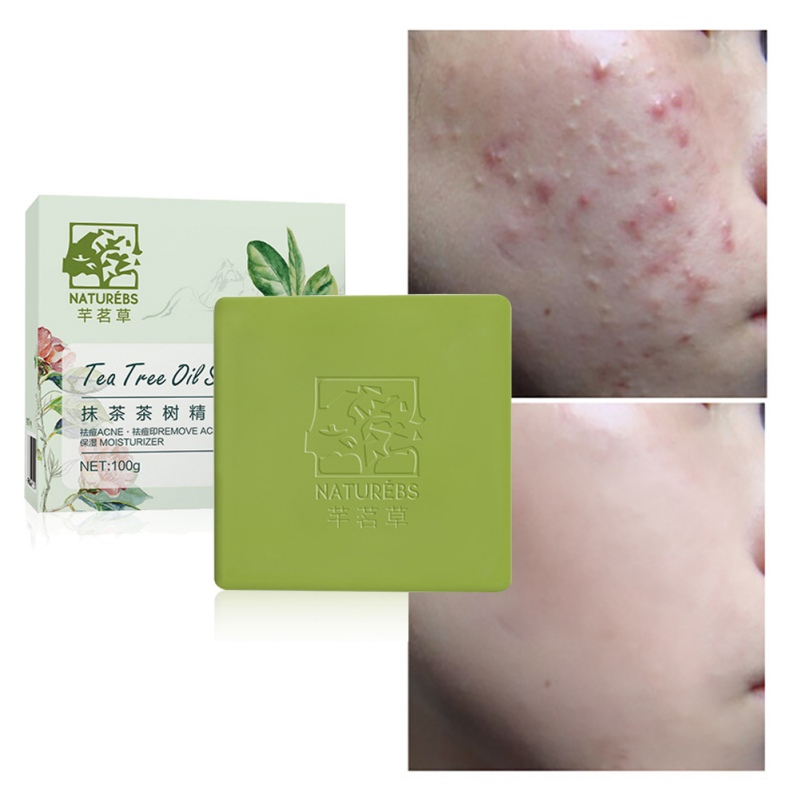 New 100g Green Tea Extract Soap Moisturizing Remove Pimples Mites Control Oil Anti-Acne Shrinking Pores Handmade Soap Hot
