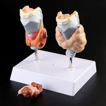 Human Thyroid Anatomical Pathology Model Normal and Disease Pathologies Medical Teaching Resource Tool