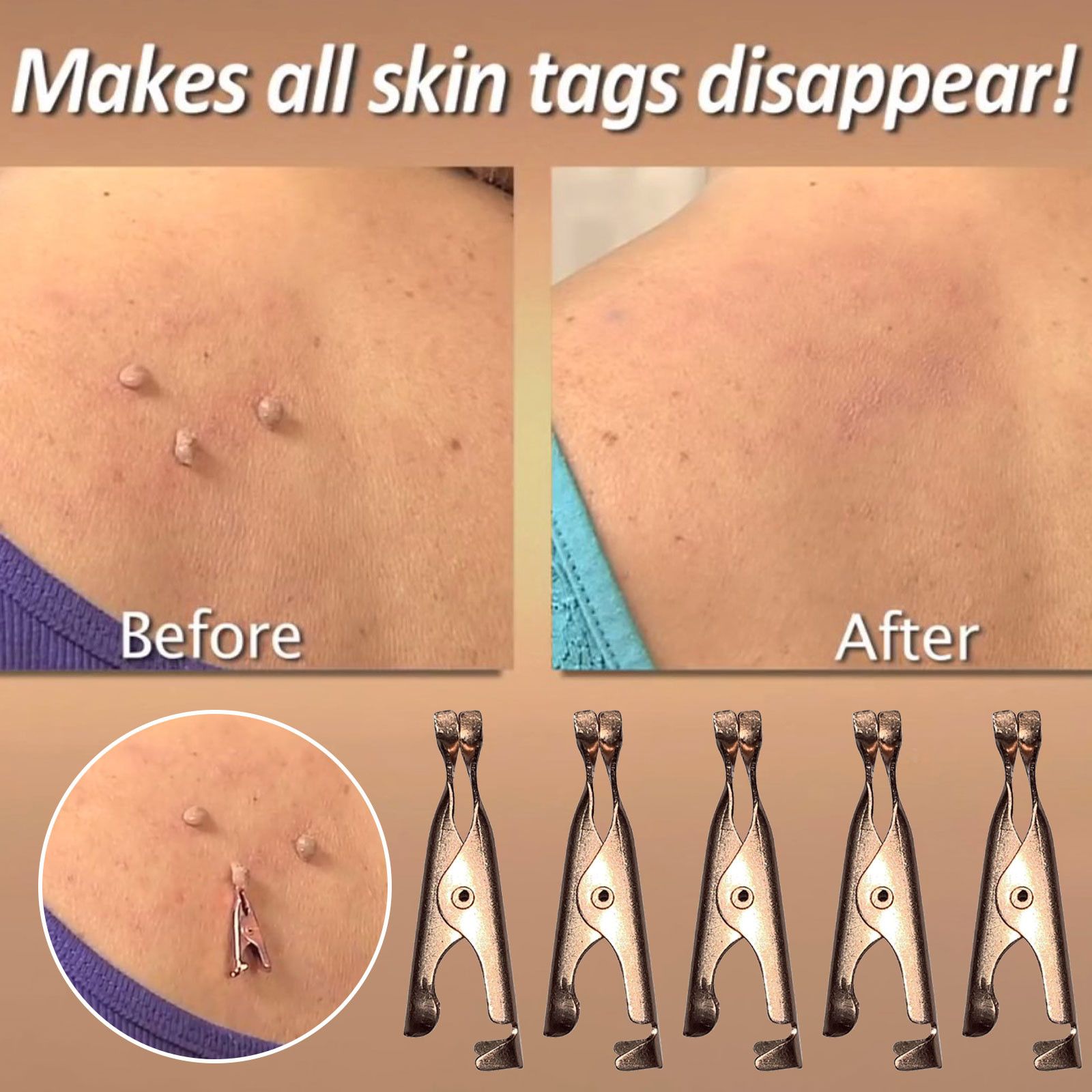 Copper Tag Out-Skin Tag Remover