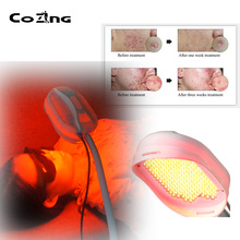 Skin Rejuvenation Acne Removal Red Light Led Therapy Infrared Pdt Photodynamic Led Light Therapy heating light machine for face messager acne spot skin rejuvenation light photon led therapy bacteria killing removal improve