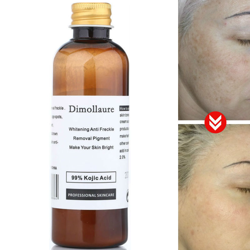 Dimollaure 30g Pure 99% Kojic Acid Whitening Cream Wrinkle Removal Freckle Melasma Acne Scar Pigment Age Spot Melanin Sunburn