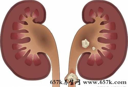 肾结石的原因 有这5点症状就要去检查了