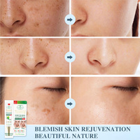 Aichun Whitening Freckle Cream Remove Melasma Acne Spot Lighten Dark Spots Pigment Melanin Hydration Moisturizing Face Care 30ml 3