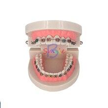 Стоматологическая обучающая модель для лечения зубов с Орто-металлическим керамическим кронштейном Arch Wire Buccal Tube Ligature Ties