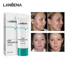 LANBENA leczenie trądziku krem do twarzy blizna usuwająca zaskórniki naprawa żel znikną trądzik plamy kontrola oleju zmniejszyć pory wybielanie pielęgnacja skóry