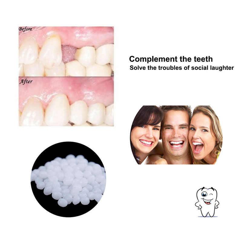 10G Nhựa Falseteeth Chắc Chắn Keo Tạm Thời Răng Bộ Dụng Cụ Sửa Chữa Răng Và Khoảng Cách Falseteeth Chắc Chắn Keo Dán Răng Giả Dính Răng Nha Sĩ