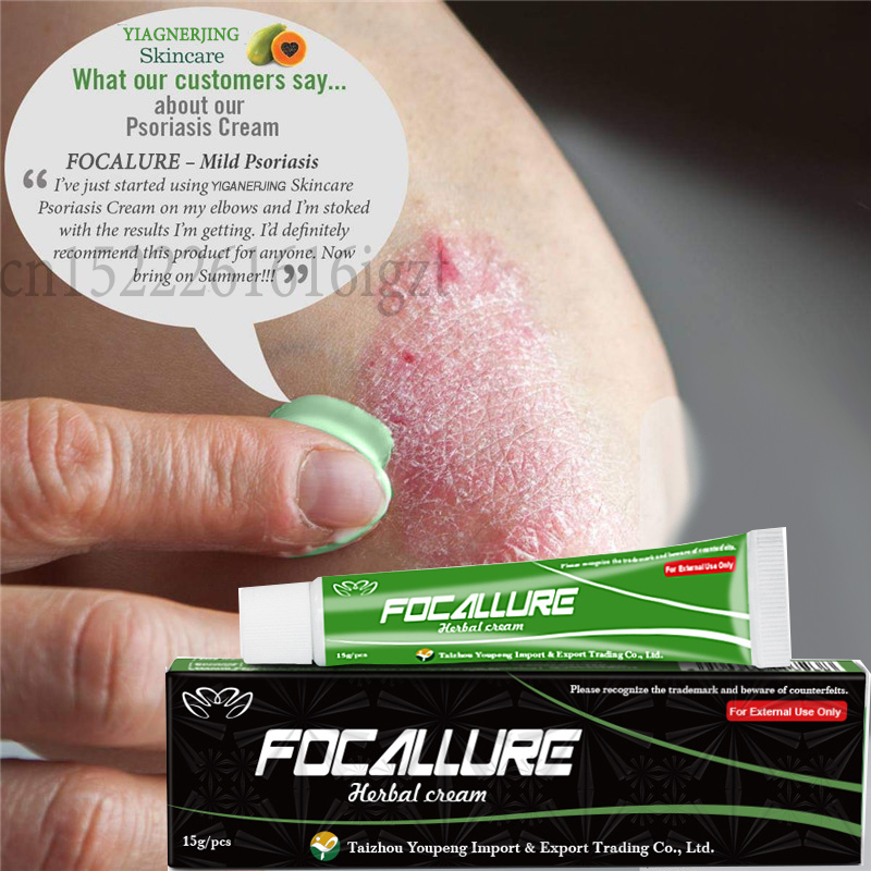 YIGANERJING NO BOX FOCALLURE Body Psoriasis Cream Dermatitis Eczematoid Eczema Ointment Treatment Psoriasis Balm 15g