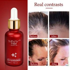 Image 3 - Huile Anti perte capillaire, produit de traitement pour la croissance capillaire, sérum naturel pour épaissir les cheveux, Solutions de soins