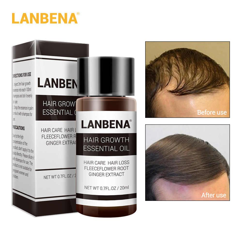Купить 3 получить 1 подарок LANBENA Сыворотка для роста ресниц 7 дней усилитель ресниц 3 шт + Быстрый мощный рост волос эссенция сыворотка 20 мл