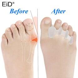 EiD 2 Pcs Silicone Gel Hallux Valgus Orthotics Bunion Toes Separator Corrector Inserts Pad Anti Eversion Overlap Inserts Pad