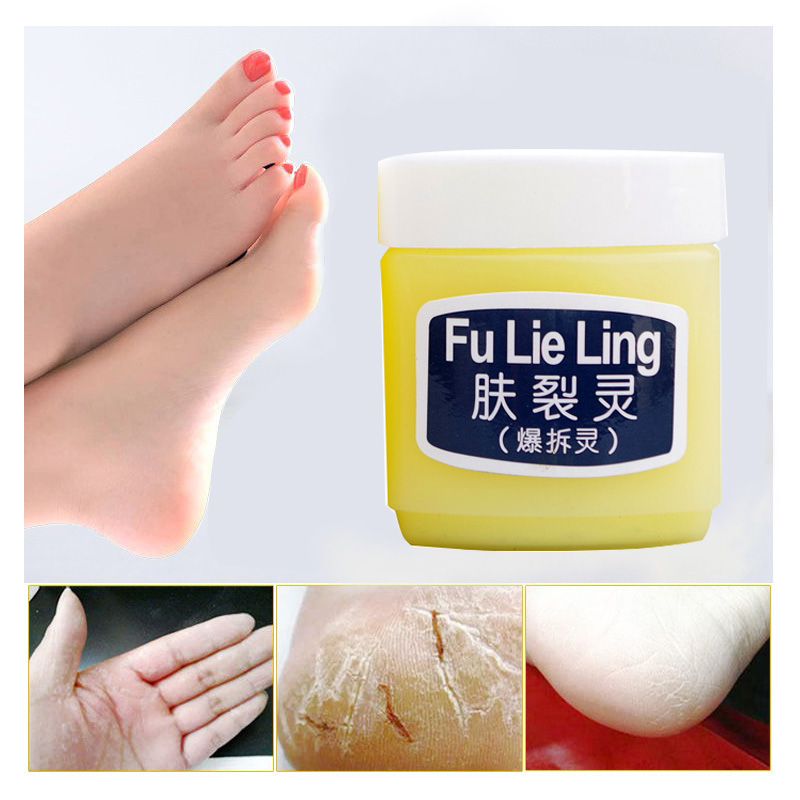 FU LIE LING Moisturizing Antipruritic Cream For Frost Crack Dry Itching Dry Scaly Skin Nourishing Cream Special For Winter 45g