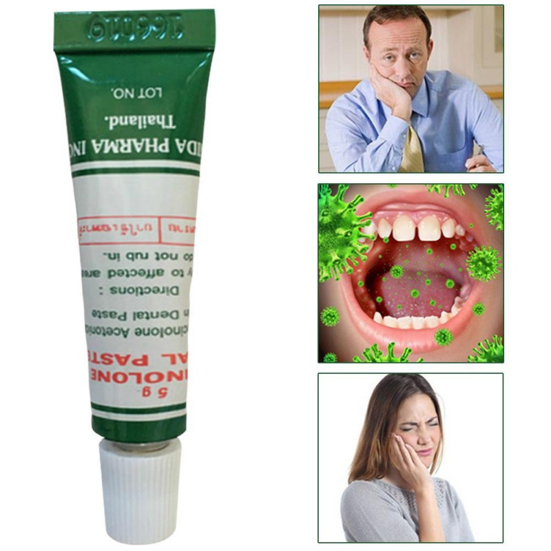 Effective Practical Oral Ulcer Cream Anti-inflammatory Relief Pain Oral Ulcer Paste Recommend