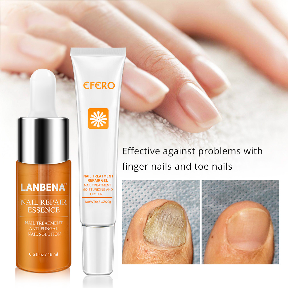 Fungal Nail Treatment Feet Care Serum Whitening Toe Nail Fungus Removal Gel Anti Infection Onychomycosis Nails Repair Essence