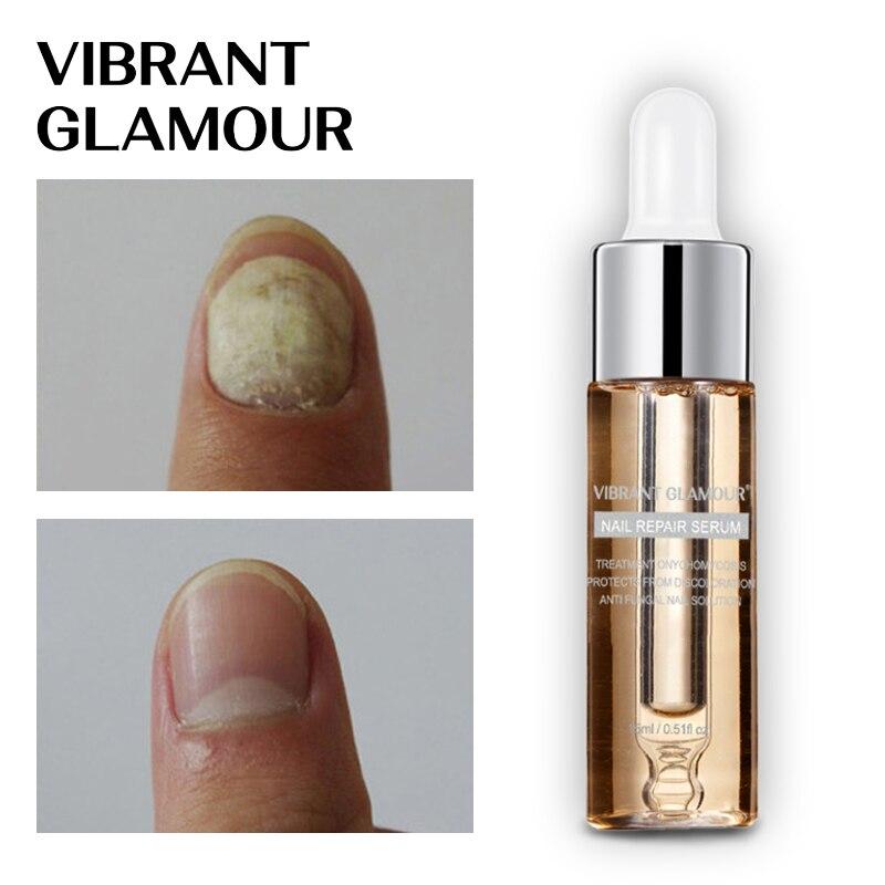 VIBRANT GLAMOUR Nail Repair Serum Nail Fungus Treatment Onychomycosis Nail Treatment Essence Anti Fungus Nail Toe Nail Care 15ml