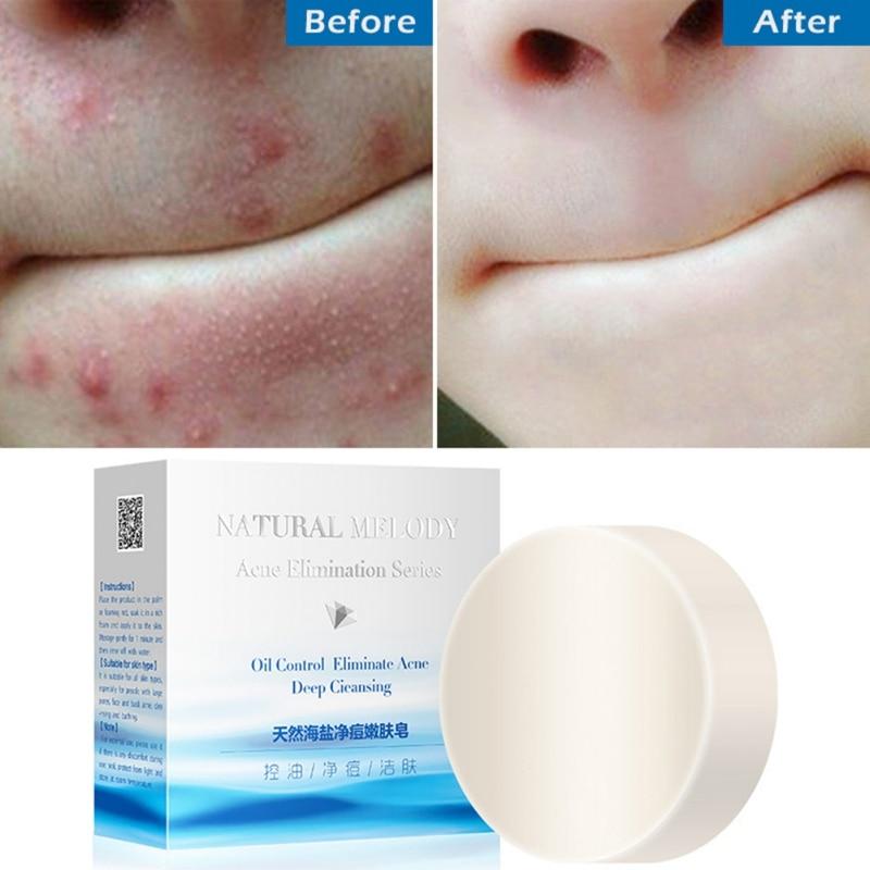 100g Soap Natural Sea Salt Soap Anti-acnes Soap Base Anti-mite Nourishing Moisturizing Skin Oil-control Handmade Soap*s