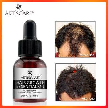 ARTISCARE Hair Growth Essential Oil Anti Hairs Loss Liquid Hair Repair Treatment Dense Hair Regrowth Serum Health Care Beauty 1
