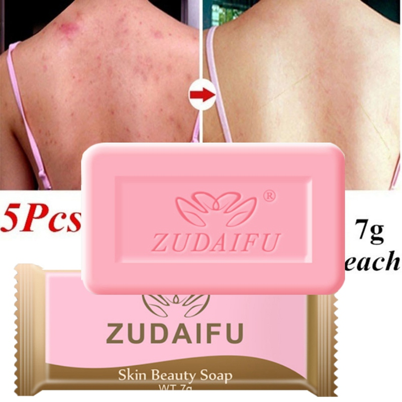 Body Cleansing Sulfur Soap Anti-acne Anti-mites Cleaning Pores Face Wash Bath Sulfur Soap Disinfection Control Oil Soap Box