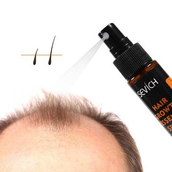 30ml płynny Spray do wzrostu włosów pomoc dla wzrostu włosów utrata włosów leczenie zniszczone włosy naprawa rosnące produkty stymulujące porost włosów TSLM1 tanie i dobre opinie CN (pochodzenie) Hair Loss Product Hair Loss Product Series 1 x Hair spray