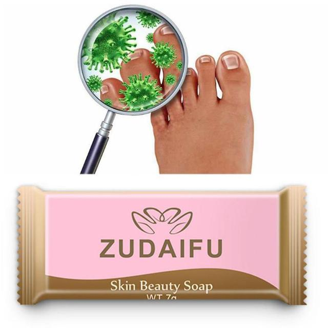 Sulfur Soap Skin Cleaning Acne Oil-Control Acne Treatment lackhead Remover Soap Whitening Chinese Traditional Skin Care TSLM1 4