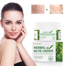 Essence-Cream Stretch-Marks Acne-Skin Blackhead-Repair Scar Herb Whitening Spots E6A1