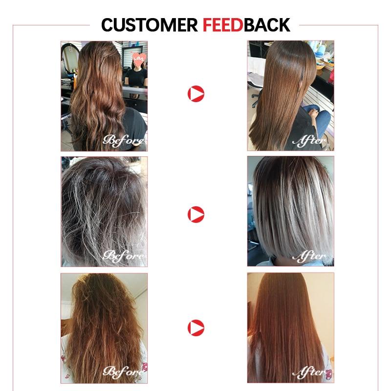tratamentos p cabelo couro cabeludo 03