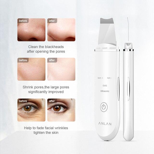 ANLAN Lavadora ultrasónica de la piel, máquina de limpieza facial profunda, pala peladora, limpiador de poros faciales, máquina de elevación de depurador de piel facial 2
