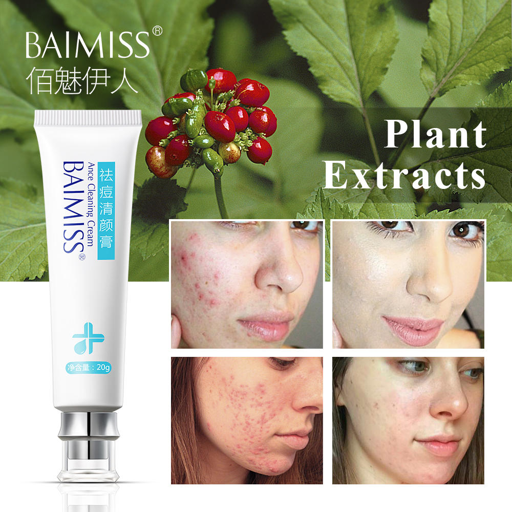 BAIMISS Acne Treatment Face Cream Remover Comedone Pimple Anti-Acne Facial Skin Care Repair Scar Gel Quickly Natural Herbal 1pcs