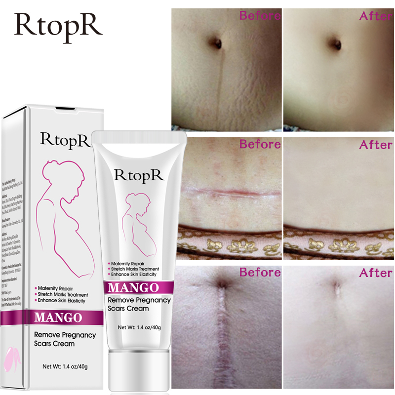 40G Remove Pregnancy Scars Skin Body Cream Postpartum Stretch Marks Repair Cream Anti-Aging Skin Winkles Firming Body Cream