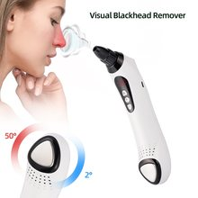 2020 New Hot & Cold Massager Blackhead Removel Visible Face Nose Blackhead Remover WiFi Camera Vacuum Suction LED Display Device