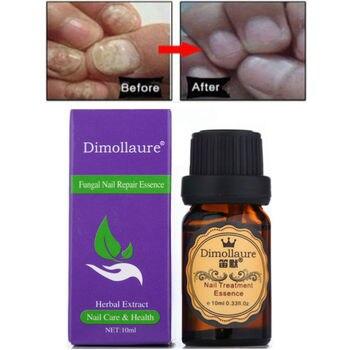 Dimollaure de hongos Esencia de tratamiento de uñas de la mano y pie eliminación de hongos de las uñas de los pies infección cuidado de uñas los pies Gel paroniquia