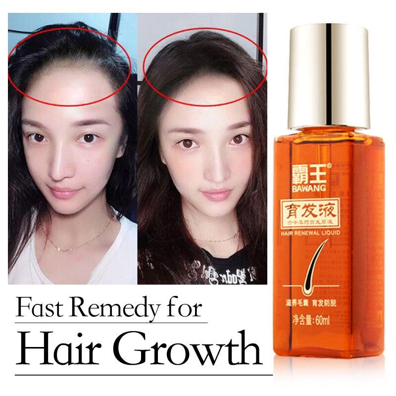 Óleo de Crescimento do cabelo para O Crescimento Do Cabelo Rápido Agente Contra O Remédio da Perda de Cabelo Tratamento Cuidado Do Cabelo Cabelo Espessante Crescimento Soro Essencial