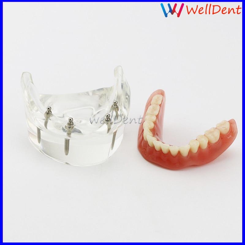 1pc dentes dentários modelo overdenture inferior 4