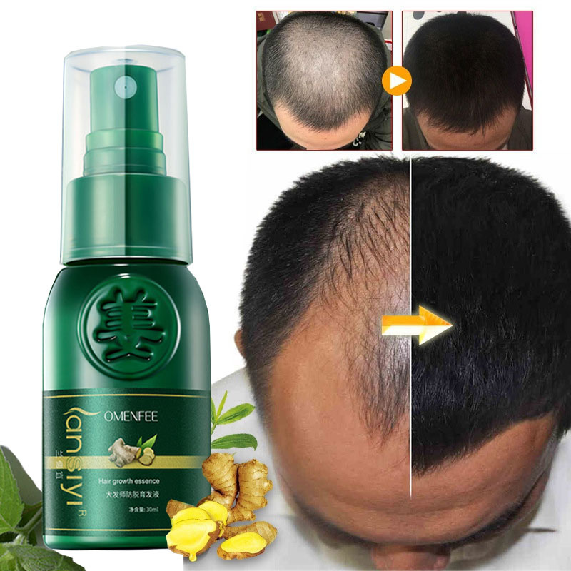Hair Growth Spray Serum 7 Days Ginger Anti Hair Loss Products Fast Grow Prevent Hair Dry Frizzy Damaged Thinning Repair Care