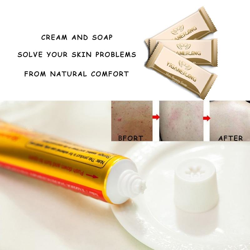 15pcs Original Guarantee YIGANERJING Pifubaodian Yellow Cream Psoriasis Dermatitis Eczema Pruritus Skin Problems No Box