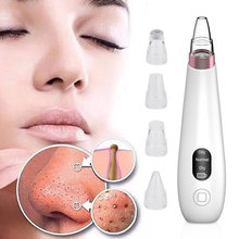 Blackhead Remover ไฟฟ้า Pore สูญญากาศผิวสีดำหัว Tag Remover สิวสิว Removal Facial Care TOOL Face Deep Pore CLEANER(China)