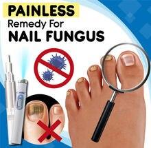 Remédio indolor para o fungo do prego anti-fungo casa tratamento conjunto onychomycosis paronychia anti fungo fungo cuidado reparação kit