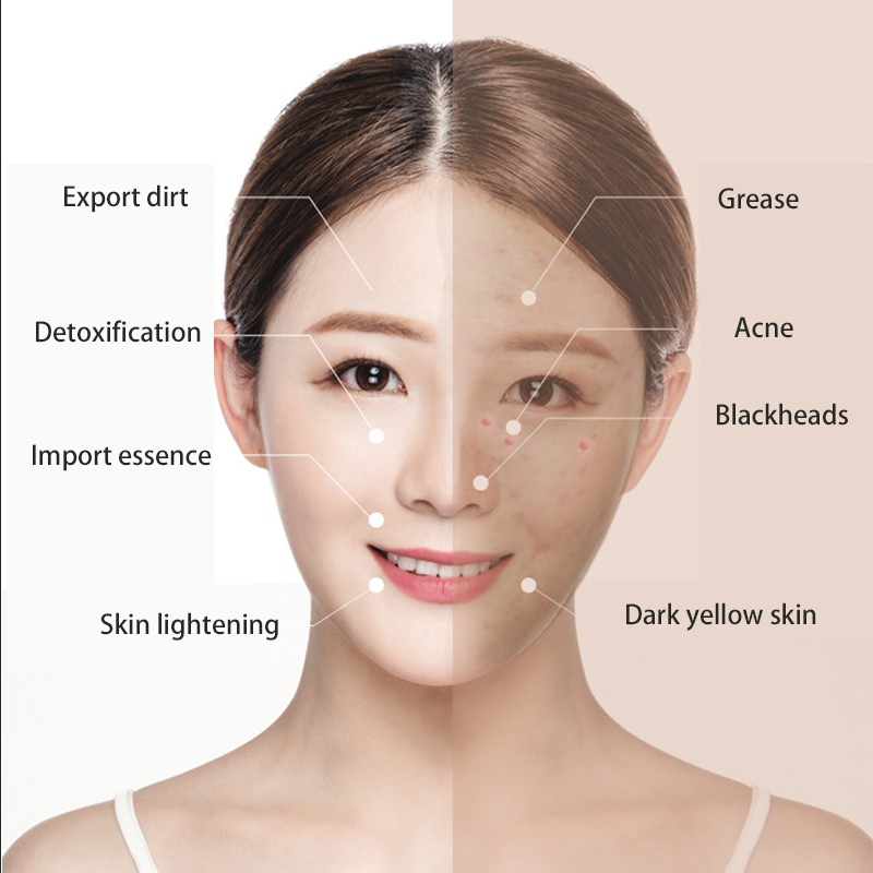 康佳電気洗顔料の洗浄顔マシン美容マッサージスキンポアクリーナーマッサージスキンケアツールスパ