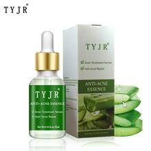 Toner natural aloe vera gel essencia cuidados com uma pele hidratante vitamina clarear toner