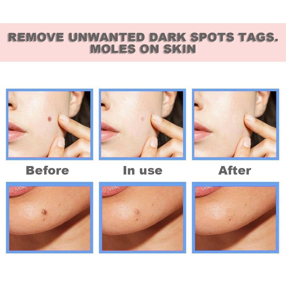 Smooth Skin Treatment Serum