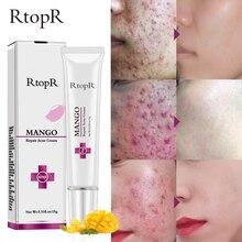 RtopR Repair Acne Cream Anti  Treatment Blackhead Shrink Pores Whitening Moisturizing Face Skin Care