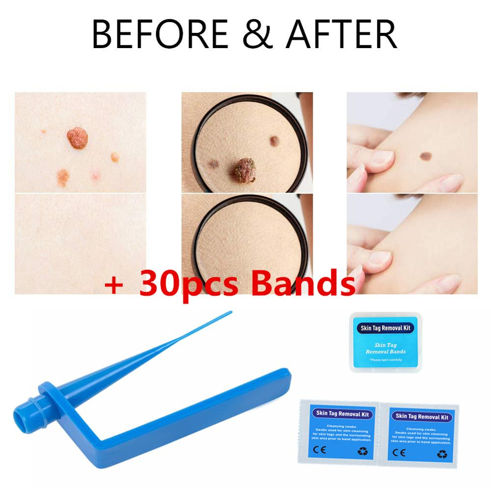 Skin Tags Remover Remove Warts Body Skin Care Tools Wart Treatment
