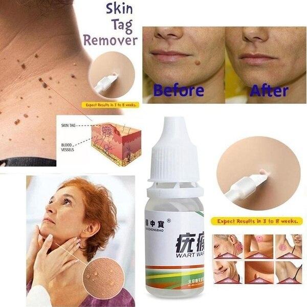 Skin Tag Remover 12 Hours Tu Kill Medical Tu Kill Remover Skin Tag Mole Genital Wart Remover Foot Corn Blackhead Remover 10ml